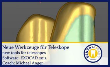 Neue Werkzeuge für Teleskope