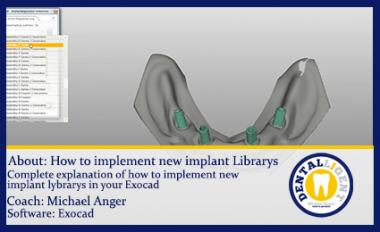 Topic: How to implement new implant Librarys
