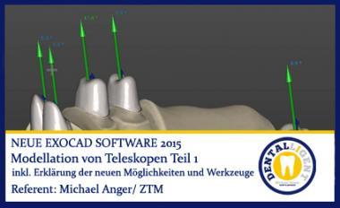 Modellation von Teleskopen Teil 1 - Exocad 2015