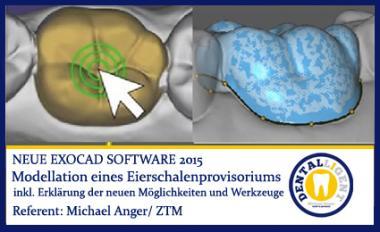 Modellation eines Eierschalenprovisoriums - Exocad2015