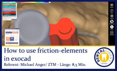 Exocad-2019TK-Soft friction-elements in exocad to get adjustable telescopes