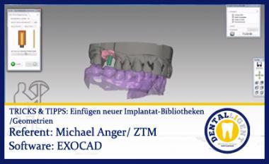TIPPS & TRICKS - Einfügen von neuen Implantat-Bibliotheken / -Geometrien