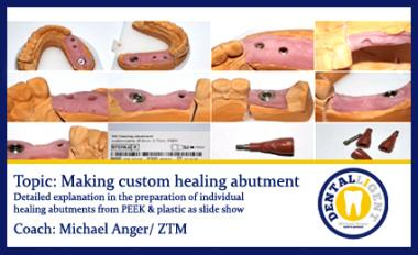 Topic: Making custom healing abutment