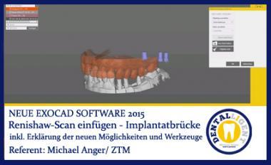 2015-Renishaw-Scan einfügen (Beispiel Implantatbrücke) - Exocad 2015
