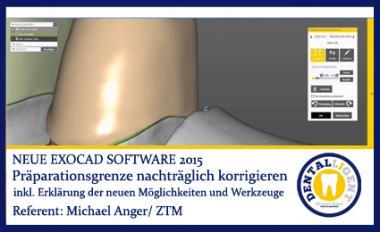 Präparationsgrenze nachträglich korrigieren - Exocad2015