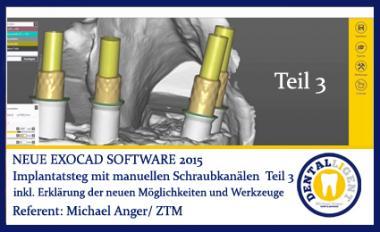 Implantatsteg mit manueller Schraubkanalpositionierung Teil 3 - Exocad 2016