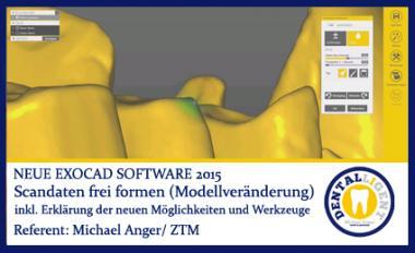 2015-Scandaten frei formen (Modellveränderung) - Exocad 2015