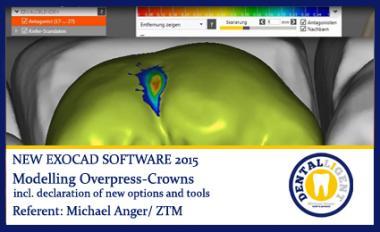 Modelling Overpress-Crowns