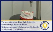 Setzen von Titan-Bohrhülsen in einer MED-3D Bohrschablone