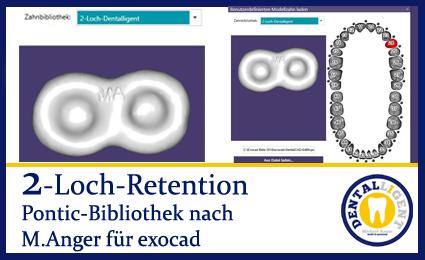 2-Loch-Retention - nach Michael Anger für die Pontic-Bibliothek für exocad