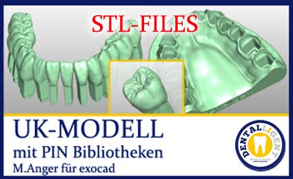 STL-FILES + BIBLIO - UK-MODELL mit PIN-Bibliothek für exocad nach M. Anger