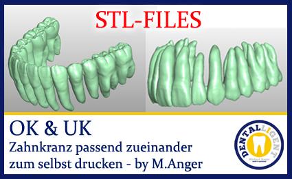 STL-FILES STL OK & UK Zahnkranz passend zueinander zum selbst drucken